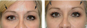 Brow Lift Botox Injection Torrance CA