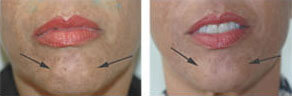 botox injections for pebble chin Orange CA