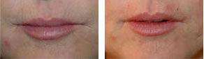 Botox Lip Wrinkles Torrance CA