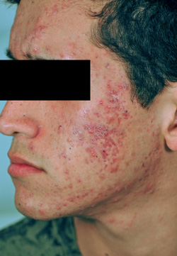 Los Angeles laser acne and acne scars treatment Before and After Pictures