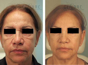 Juvederm Injections Near You | Torrance - Celibre Medical Corporation