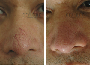 Laser vein facial removal of for Cost