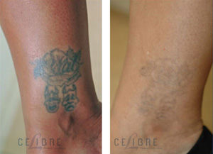 What will my laser tattoo removal cost for Laser remove tattoo price