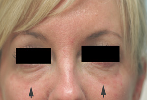 Restylane tear trough Before Picture
