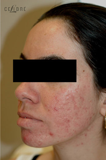 Acne Treatment After Pictures 10