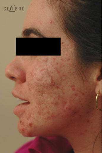 Acne Treatment Before Pictures 10