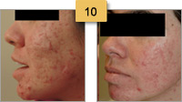 Acne Treatment Before and After Pictures Sm 10
