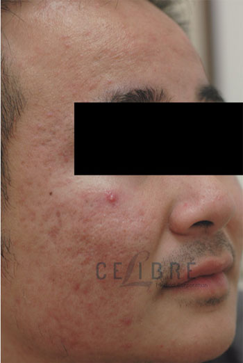 Acne Treatment After Pictures 1