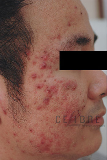 Acne Treatment Before Pictures 1