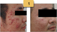 Laser Acne Treatment Before and After Pictures Sm 1