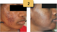 Acne Removal Before and After Pictures Sm 2