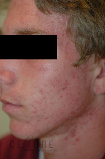 Acne Treatment Before and After Pictures 3