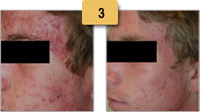 Acne Removal Before and After Pictures Sm 3