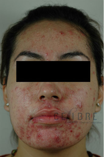 Acne Treatment Before and After Pictures 4
