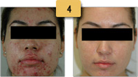 Laser Acne Removal Before and After Pictures Sm 4