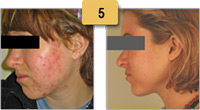 Laser Acne Treatments Before and After Pictures Sm 5