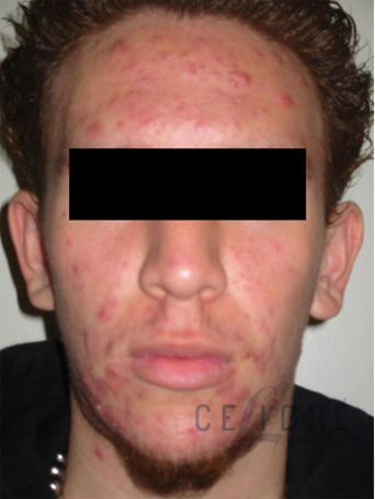 Acne Treatment Before Pictures 6