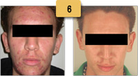 Treating Acne Before and After Pictures Sm 6