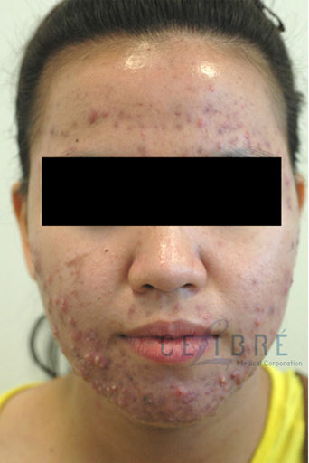 Acne Treatment Before and After Pictures 7