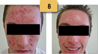 Acne Removal Before and After Pictures Sm 8