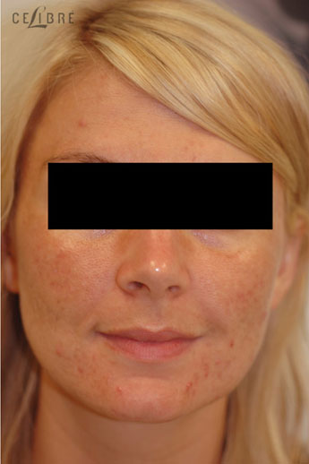 Acne Treatment After Pictures 9