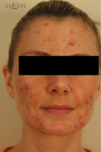 Acne Treatment Before Pictures 9
