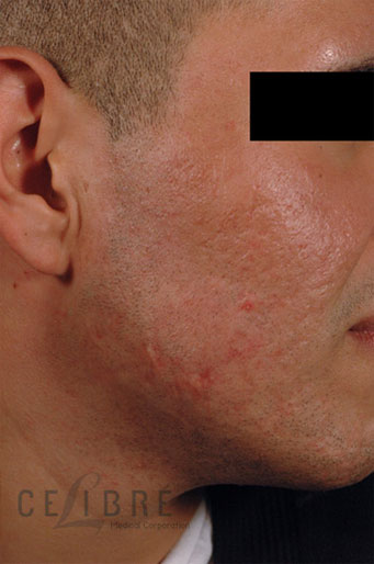 Acne Scar Removal After Pictures 2