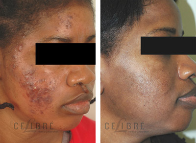 Acne Scar Removal Before After Photo