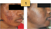 Acne Scar Treatment Before and After Photos Sm 1