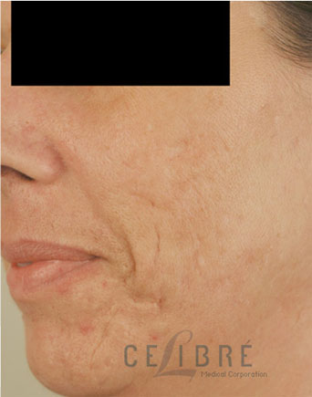 Acne Scar Treatment After Photos 4
