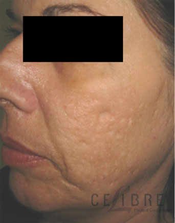 Acne Scar Treatment Before Photos 4