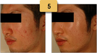 Acne Scar Treatment Before and After Pictures Sm 5