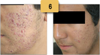 Acne Scars Treatment Before and After Pictures Sm 6
