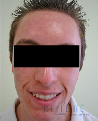 Acne Scar Removal After Pictures 7