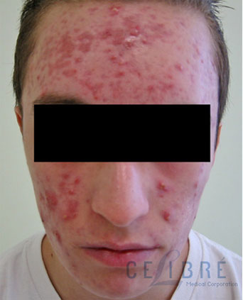 before and after acne scars red scars