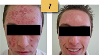 Acne Scar Removal Before and After Pictures Sm 7