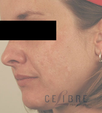Acne Scar Removal After Pictures 8
