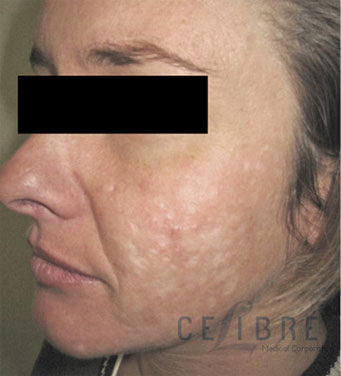 Acne Scar Removal Before Pictures 8