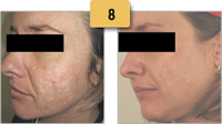 Acne Scar Removal Before and After Pictures Sm 8