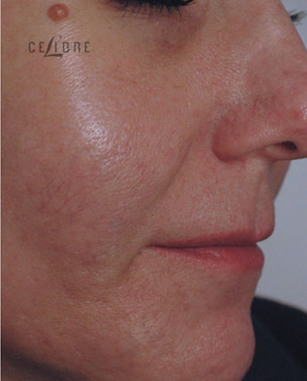 Acne Scar Removal BAfter Pictures 9