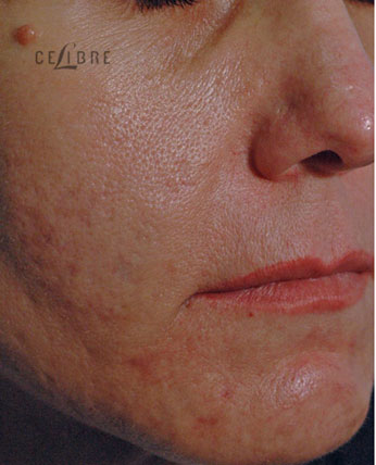 Acne Scar Removal Before Pictures 9