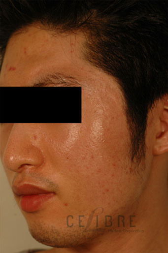 Acne Scar Treatment Asian Skin After Pictures 5