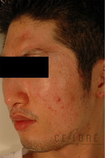 Acne Scar Treatment Asian Skin Before Pictures 5