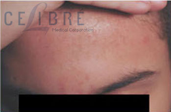 Birthmark Removal After Pictures 4
