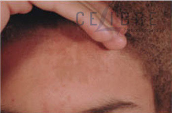 Birthmark Removal Before Pictures 4