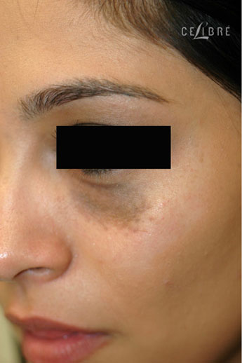 Birthmark Removal Before Pictures 6