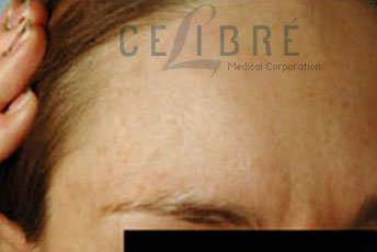 Birthmark Removal After Pictures 1