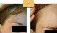 Beckers Nevi Birthmark Removal Before and After Pictures Sm 1