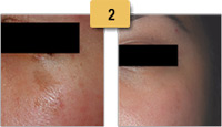 Cafe-au-lait Brown Birthmark Removal Before and After Pictures Sm 2