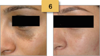Cafe-au-lait Birthmark Removal Before and After Pictures Sm 6